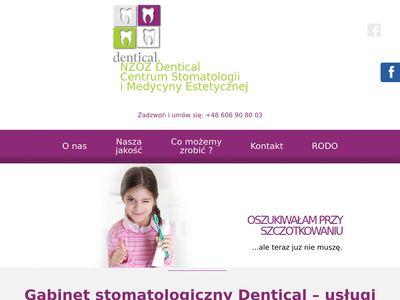Dentical wybielanie zębów Kalisz
